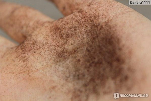 Порошок на руке. Когда используете, надо сыпать на голову, на руки не сыпте!!!!