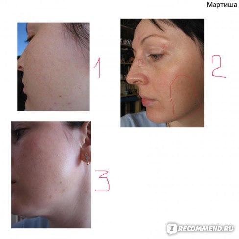 Синяки и следы от уколов фото №1,2 - день 2й; фото №3 - день 5й