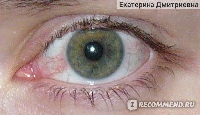 Мои тогдашние глазки