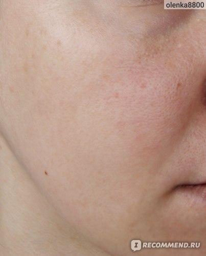 очищенная кожа лица без макияжа