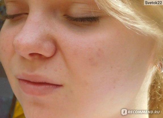 Крем для проблемной кожи Retino-A Третиноин фото