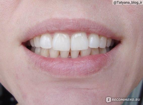 Что можно есть после гигиенической чистки зубов