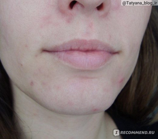 Состояние кожи в период обострения.