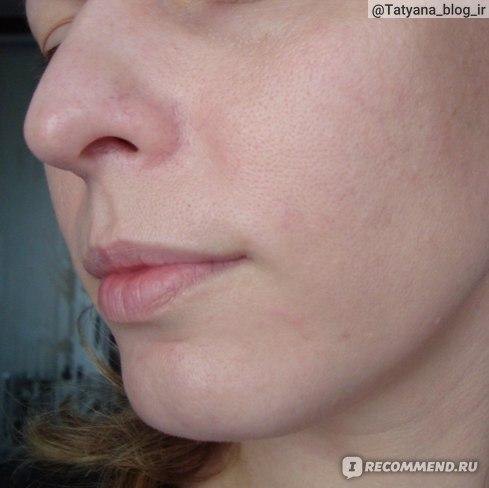 Состояние кожи спустя 2 месяца применения геля для умывания.