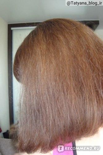 Алерана против выпадения и роста волос - результат применения.