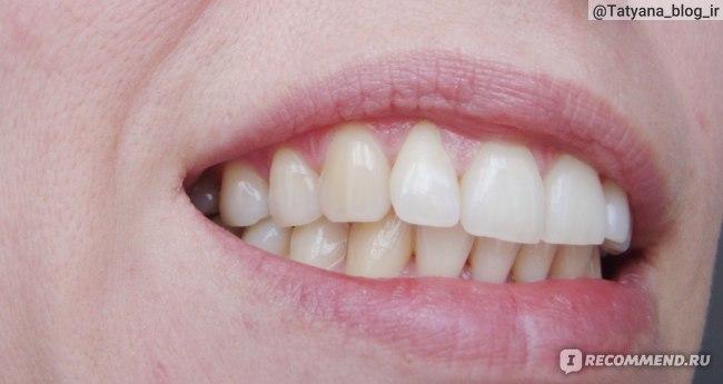 Красящие продукты для зубов после чистки