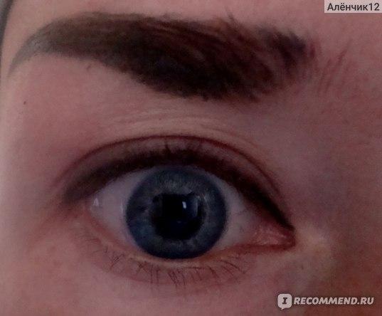 Так выглядит глаз с минимальным нанесением сурьмы