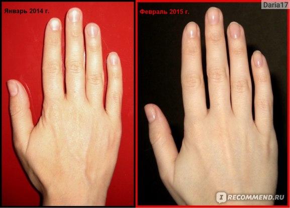 Что Нужно Чтоб Похудели Пальцы На Руках. Как похудеть в кистях рук