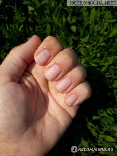 Масло для ногтей и кутикулы Severina Комплекс ухаживающих масел (апельсин, лимон, виноград, облепиха) с календулой № 615  фото