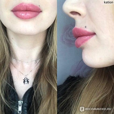 Увеличение / Аугментация губ с помощью препарата гиалуроновой кислоты фото
