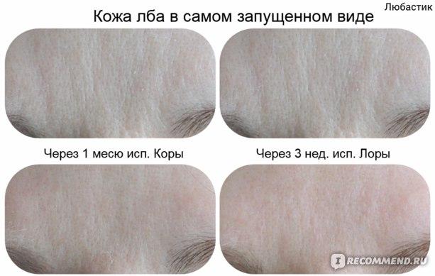 Крем для лица Эвалар Лора  фото