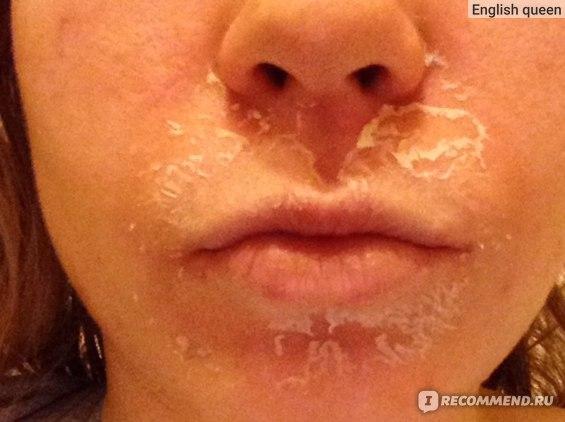 День 3: после обеда началась шелушиться кожа. Область рта и носа активно шелушится. Остальная область лица просто подсушена. Третий день без макияжа.
