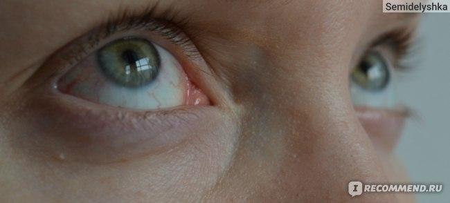 Азидроп глазные капли