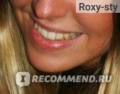 Отбеливание зубов Opalescence Boost фото