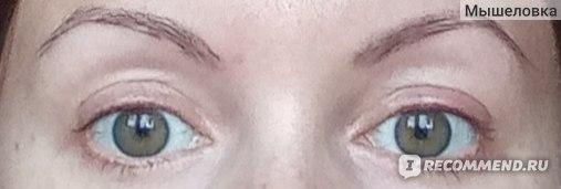 Глаза открыты - рубцов не видно
