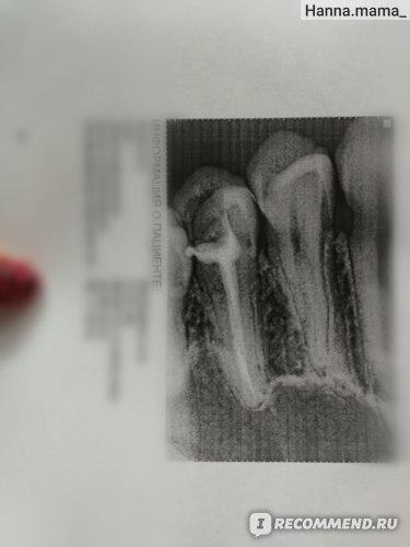 Депульпация (удаление нерва) или эндодонтическое лечение зуба