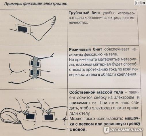 Аппарат для гальванизации и электрофореза Невотон Элфор ...