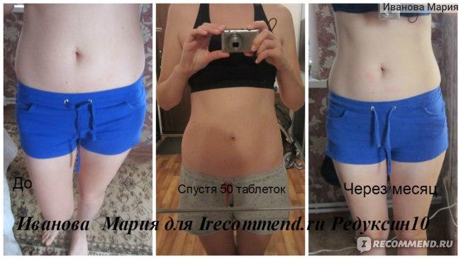 Редуксин Похудеть До И После Фото. Таблетки Редуксин 15 мг: отзывы худеющих с фото