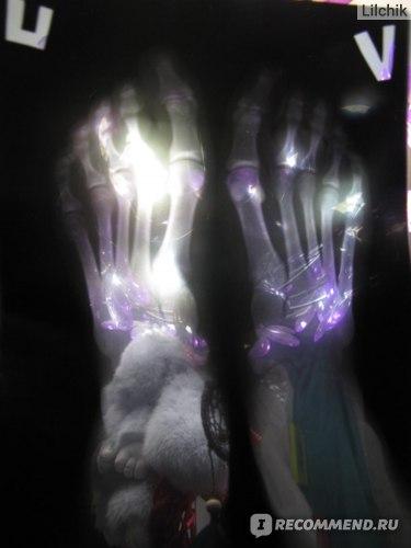 Рентген стоп - перевернутый