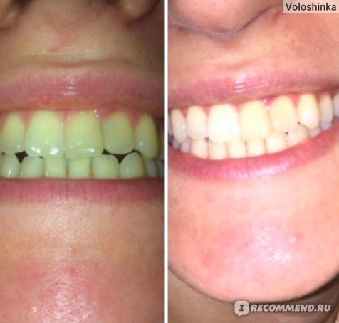 Электрическая зубная щетка Philips HX6511 фото
