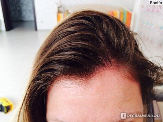красноту видно по кромке начала роста волос