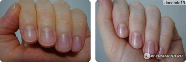 ДО и ПОСЛЕ использования масла (разница между фото около недели)