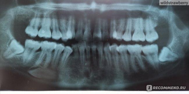 по факту уже  31 зуб вместо 33