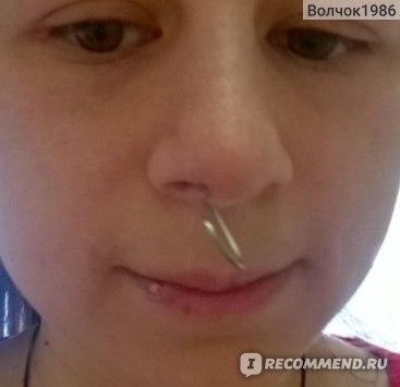 Прокол пазухи носа фото