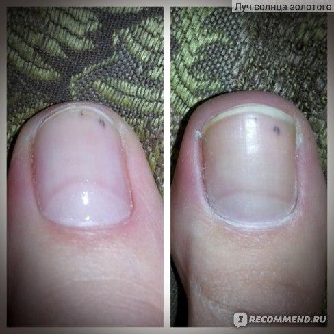 после и до обработки ногтя