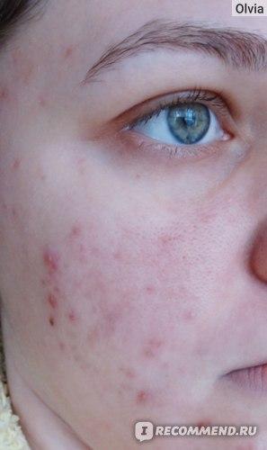 Примерно месяц после начала лечения