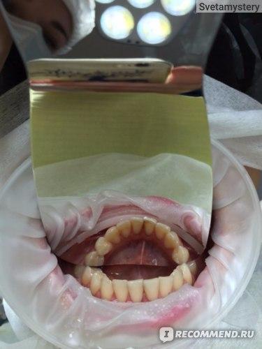 Зубы до процедуры. Зубной камень на задней поверхности зубов нижней челюсти