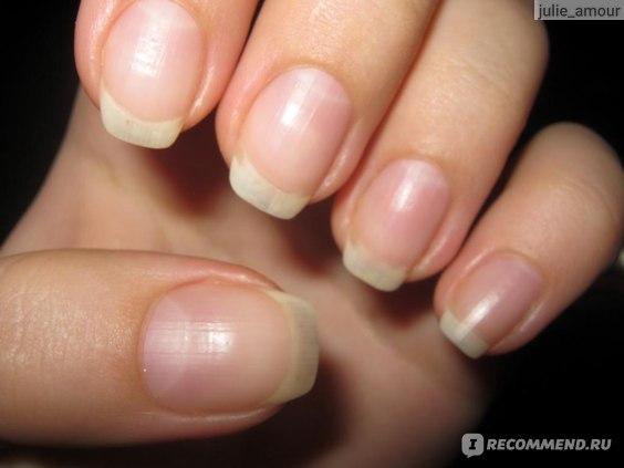 так мои ногти растут за 2 недели без всяких намазок-укреплений