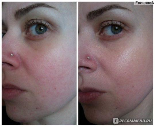 на фото слева: чистая кожа, справа: с СС кремом Rosaliac