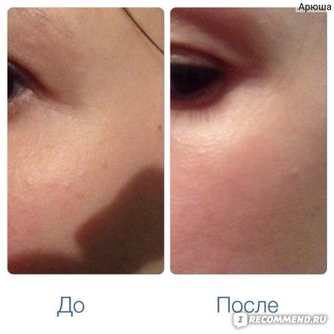 Уголки глаз: морщины немного разгладились