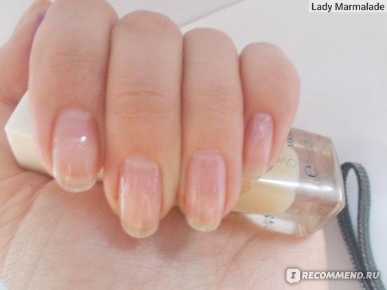 витамины Аевит для ногтей, фото