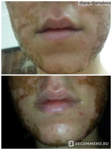 Как убрать шрам на лице: народные способы и методы
