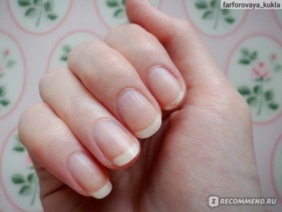 Ногти ПОСЛЕ