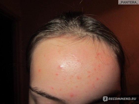 Набор для ухода за кожей лица Proactiv Набор proactiv solution фото