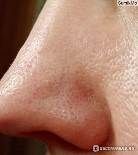Аппарат для ультразвуковой чистки лица Aliexpress Ultrasonic Skin Scrubber Facial Skin Scrubber Blackhead Removal Cleaner Ultrasonic Facial Cleaner Spatula Face Lifting Massager фото