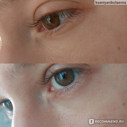 Патчи гидрогелевые для области вокруг глаз SIAYZU RAIOCEU С гиалуроновой кислотой и аллантоином, осветляющие фото