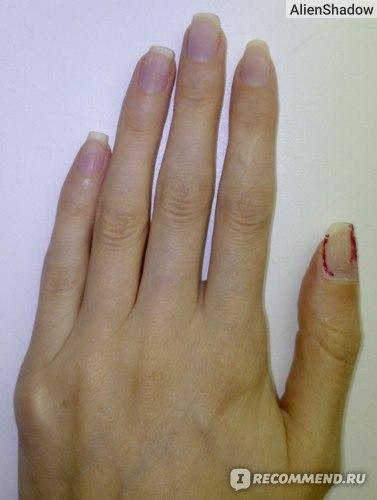 На большом пальце оставила для примера после снятия фольги
