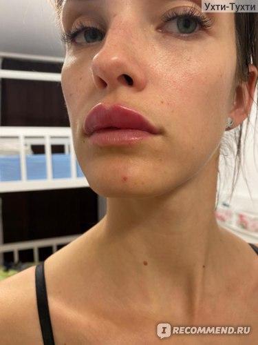 Увеличение губ Juvederm фото