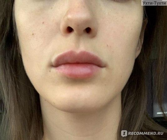 Увеличение губ препаратом Juvederm ULTRA Smile французской фирмы ALLERGAN фото