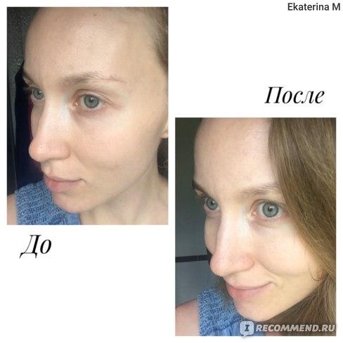 Сливки для лица Neo Care Crème фото