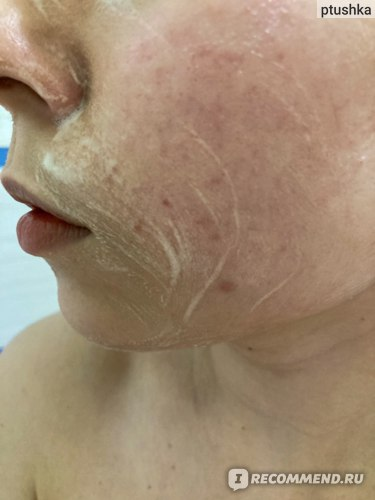 Энзимная пудра Icon Skin для жирной, комбинированной и проблемной кожи фото