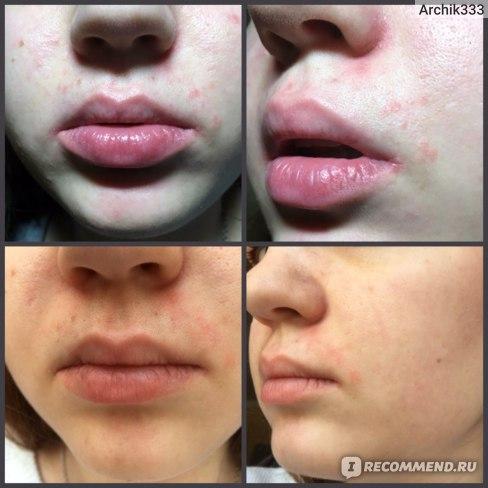Средства для лечения аллергии Dr. Reddy's Цетрин фото