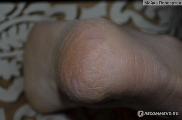 вот такая кожа на пятках. Очень сухая. Плюс на руках стали появляться трещины.