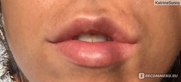 в принципе, эффект присутствует, верхняя губа стала больше