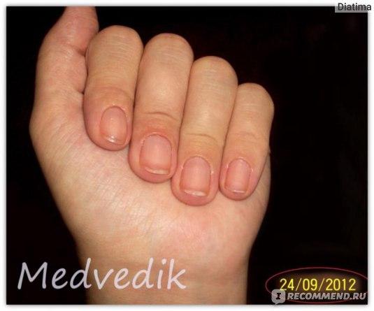 Лак для ногтей Умная Эмаль Комплекс для слоящихся ногтей фото