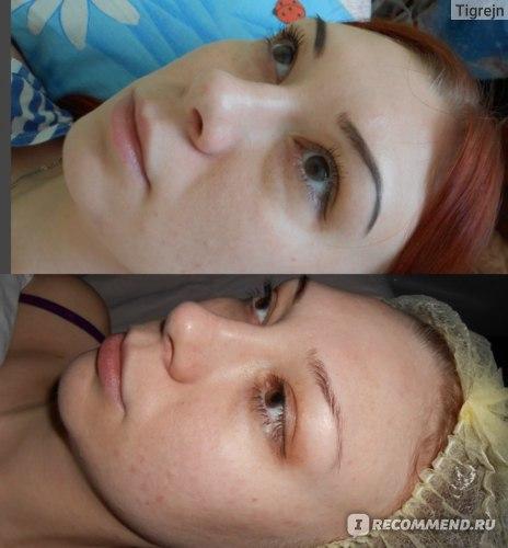 Лицо утром до и вечером после массажа
